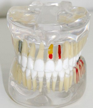 Maus Hábitos podem causar câncer bucal